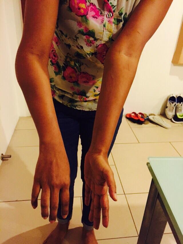 1.3_Najufa swelling